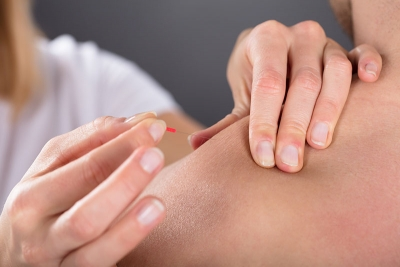 Acupuncture: A Reliable Option for Migraine Prevention And Treatment